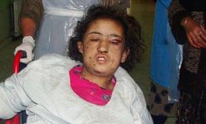 Sahar Gul torture afghanistan