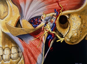 Peter Cull's illustration entitled A Dissection of the Temporomandibular Join