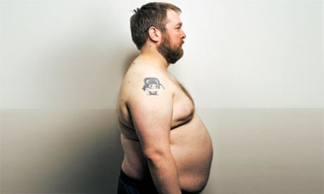 My moobs and me: growing up with gynecomastia | Life and style | The