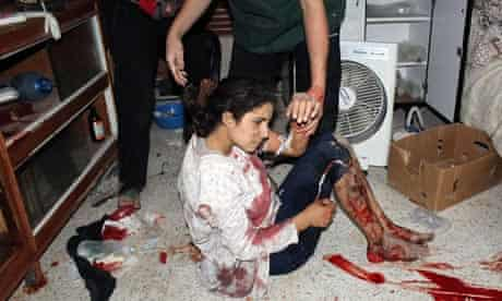A Syrian girl allegedly injured during violence in Homs
