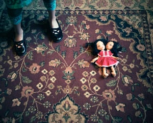 Conjoined twins: Conjoined twins: Carmen and Lupita