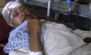 Man treated after Hanifa Safi killed in bomb blast