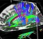 A brain scan called diffusion tensor imaging (DTI)