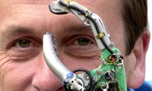 PROFESSOR KEVIN WARWICK AND HIS CYBERNETIC ARM AT READING UNIVERSITY, BRITAIN - 2002