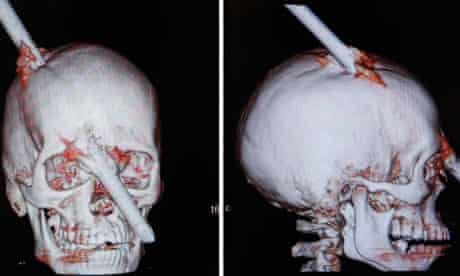 Tomography scans of Eduardo Leite's skull after it was pierced by an iron bar