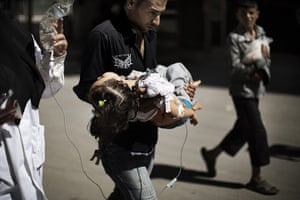 24 hours in pictures: A Syrian man carries his wounded daughter outside a hospital