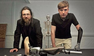 Bionic man: Richard Walker and Bertolt Meyer with iWalk BiOM Ankles