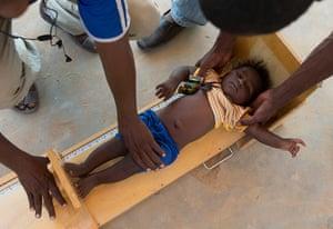 Chad Stunted Nation: Malnutrition