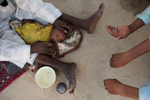 Chad Stunted Nation: traditional healer