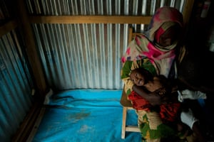 Chad Stunted Nation: severe malnutrition, in a nutritional health clinic
