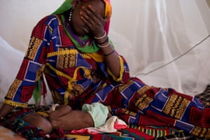 Chad Stunted Nation: malnourished children at a nutritional health clinic