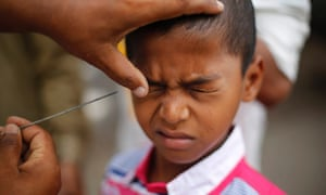 An Indian Muslim boy reacts as a man applies Kohl, an eye cosmetic on his eye after prayers during Eid in Mumbai, India.