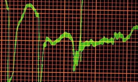 Graph showing heart attack