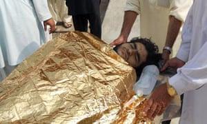 An injured bomb victim