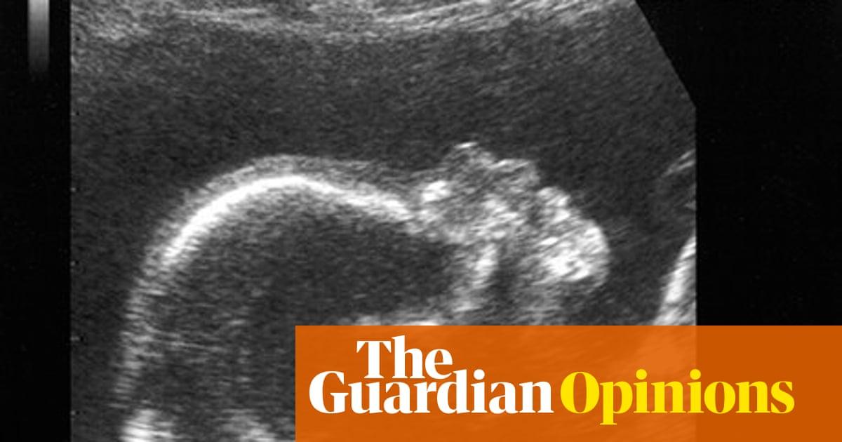 pregnancy risk fetish