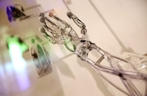 3d printing: A 3D printed prosthetic arm