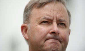 The Questionable Loyalty Of Anthony Albanese Paula Matthewson Opinion The Guardian