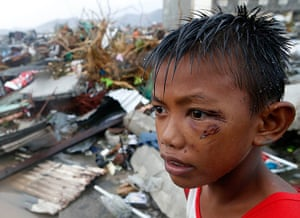 Typhoon hits Tacloban: a boy who was wounded by flying debris
