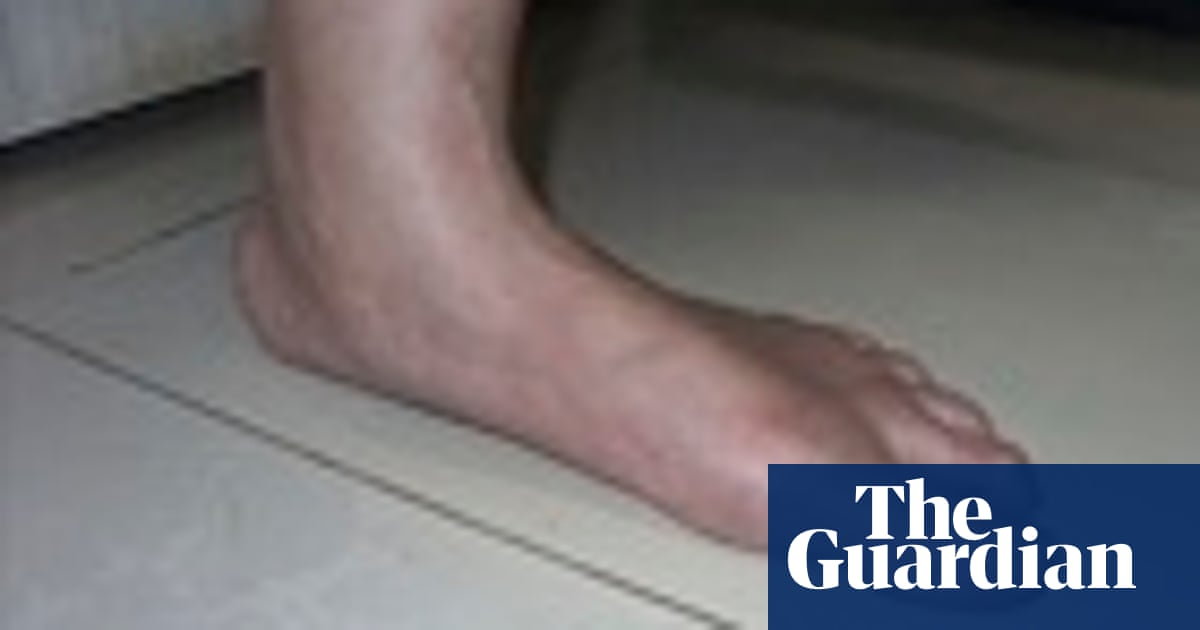 fa3c9ae1c2 Science of the sole: do orthotics help people with sore feet? | Steve  Caplan | Global | The Guardian