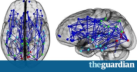 Male and female brains wired differently, scans reveal   Science ...