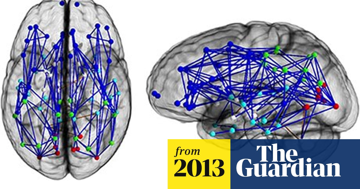 Male and female brains wired differently, scans reveal | Science