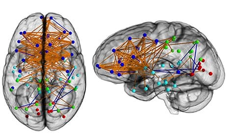 Male And Female Brains Wired Differently Scans Reveal Science - 14 hilarious differences proving men women see world two different ways 6 true