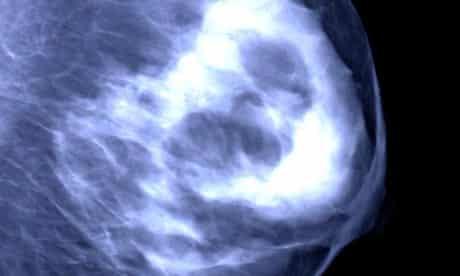 Breast mammogram