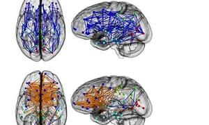 Men and women brains