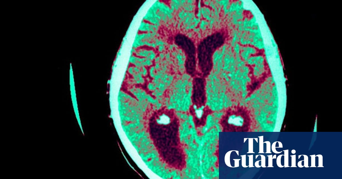 Male And Female Brains The Real Differences Science The Guardian