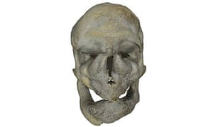 Skull from Digitised Diseases website