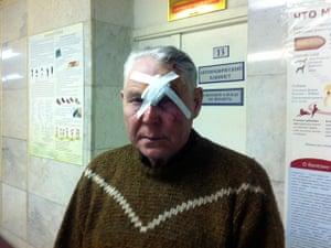 meteorites in Russia: An injured local man in a hospital in Chelyabinsk