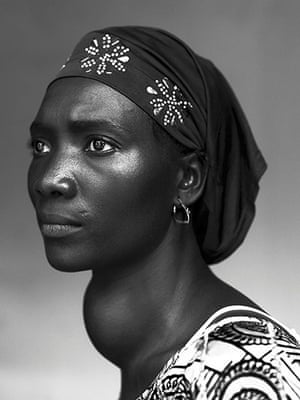 WPP: Makone Soumaoro, 30, who has a goiter, in Conakry, on 17 October 2012