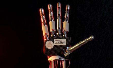 Paralysed bionic breakthrough aritifical limbs