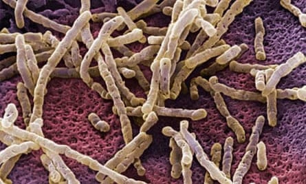 Clostridium difficile (C diff)