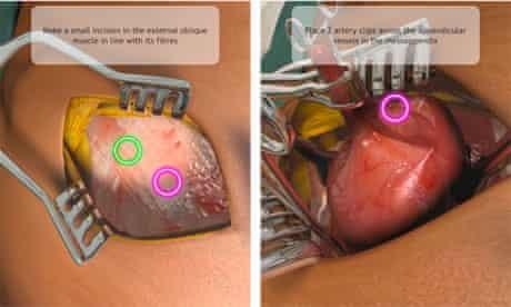 The open appendectomy procedure