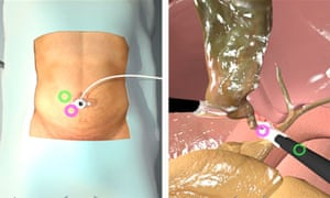 The Laparoscopic Cholecystectomy procedure