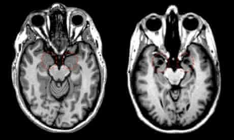 SM amygdala