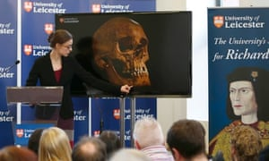 Jo Appleby shows the press one of the injuries to Richard III's skull, on 4 February 2013.
