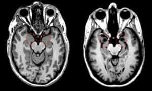MRI brain scans of healthy and damaged amygdalas
