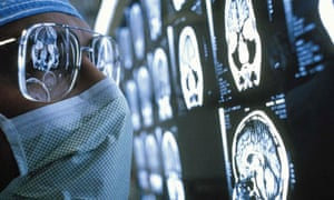 Brain scan for cancer