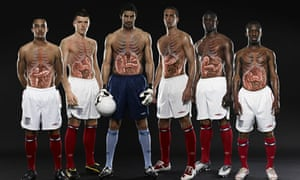 Bowel cancer awareness campaign from 2009
