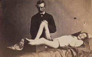 Civil war photography: 179. Private Parmenter Under Anesthesia.jpg