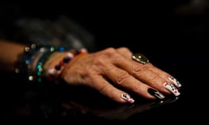 Evie Branan, 79, shows her decorated nails as she attends the Bob Seger concert. For the past two years, Branan has been eagerly waiting for that Seger concert after she came out of her semi coma on May 7, 2011.