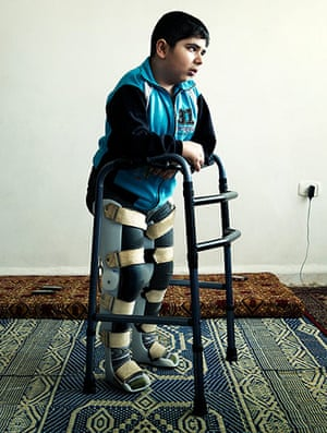 Giles Duley: Bashar, a Syrian refugee who was injured by a tank shell