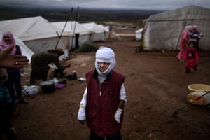 Pulitzer prize: Abdullah Ahmed, 10, who suffered burns in a Syrian government airstrike