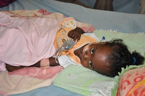 One-year-old Samah Suraj receives treatment for a severe diarrhoea infection