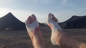 Marathon des Sables: Bandaged feet