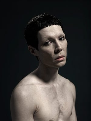 Big Picture - surgery: man with black hair and naked torso on a black background