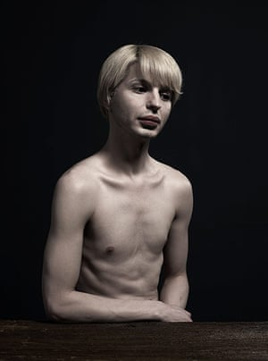 Big Picture - surgery: man with blond hair and naked torso on a black background