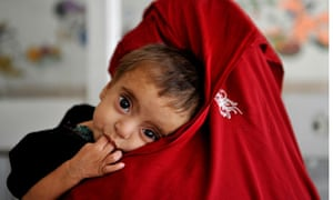 Mother holds child, who has malnutrition, in Kabul
